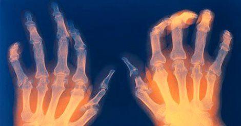 Come trattare Artrite Psoriasica, Reumatoide, Artrosi ed Osteoporosi con la Vitamina D | Dionidream | Bloglovin'