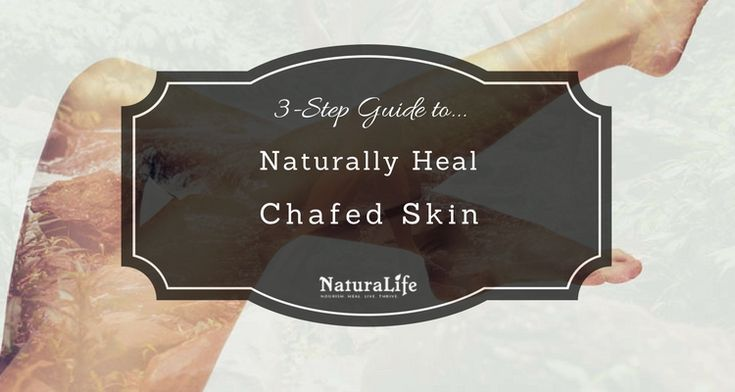 How to Quickly Heal Skin Chafing  A Complete Guide This complete guide can help you get rid of your irritating chafed skin. And best of all it only uses natural products and home remedies.