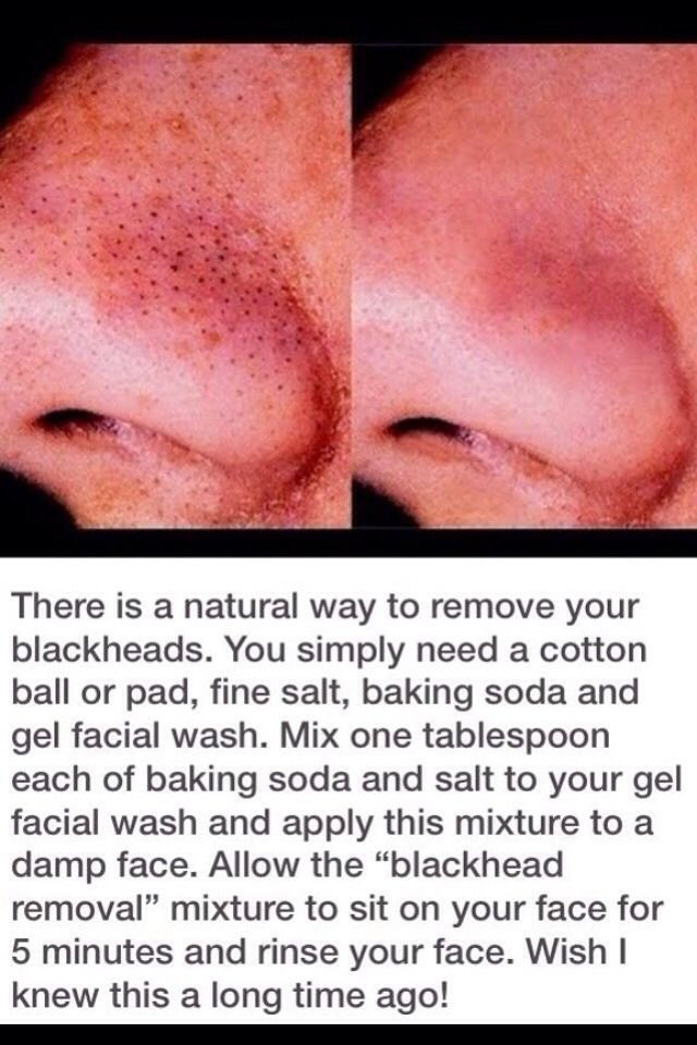 Kind of a gross pic, but helpful info....Easy at home blackhead remover! Use 1tbs baking soda, 1tbs salt, and any gel face wash of your choice! mix and leave on for five minutes.