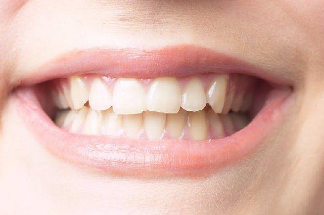 Elimine las manchas rebeldes de los dientes, como las de tabaco, sumergiendo el cepillo en un puré de frutillas. Cepille a fondo y luego en...