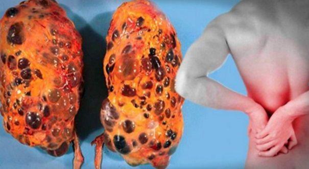 Los riñones son órganos en forma de frijol; cada uno aproximadamente del tamaño de un puño. Ellos se encuentran cerca del centro de la espalda, justo debajo de la caja torácica (costillas), uno en cada lado de la columna vertebral. Los riñones son máquinas sofisticadas de reprocesamiento. Cada día, los riñones de una persona procesar unos 190 litros de sangre. Para eliminar unos 2 litros de productos de desecho y el exceso de agua. Los residuos y el agua a ser el exceso de orina, que fluye a…