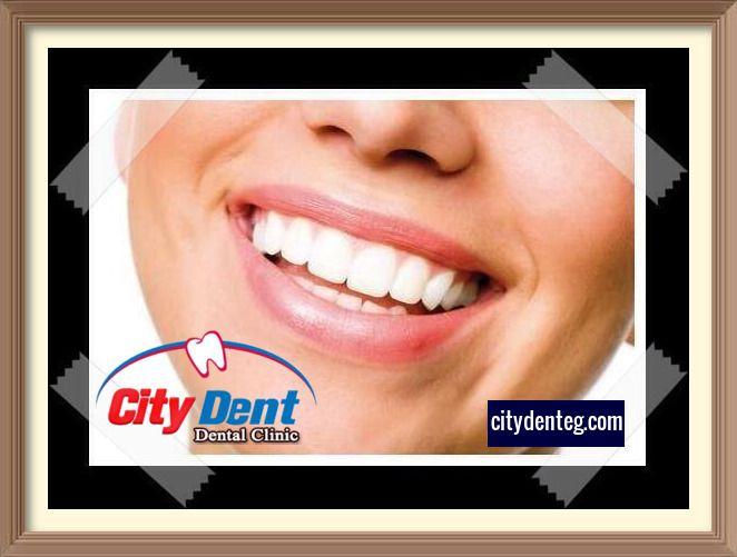 تبييض الأسنان في عيادة الأسنان أم تنظيف الأسنان في المنزل Beautiful Teeth Dental Dental Clinic