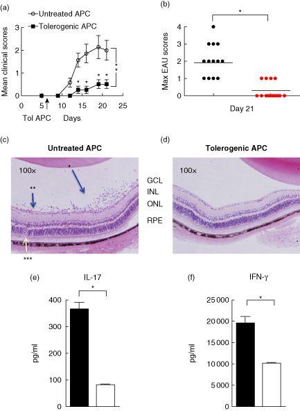 anterior chamber associated immune deviation pdf