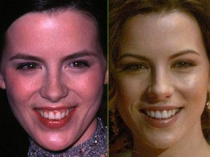 Kate Beckinsale Before and After Cosmetic Dentistry