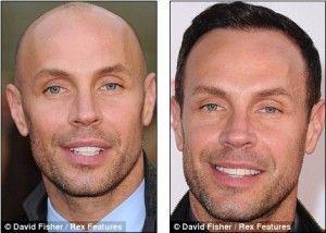 Jason Gardiner, 50 Celebrities Who Have Had Hair Transplants
