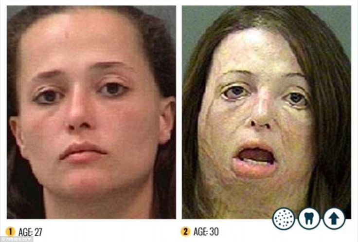 Shocking: Over a period of just three years, this meth addict's entire face has become disfigured