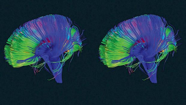 """Your Brain Has A """"Delete"""" Button. Here's How To Use It - This is the fascinating way that your brain makes space to build new and stronger connections so you can learn more."""