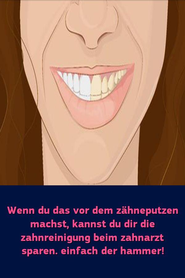 Wenn du das vor dem zähneputzen machst kannst du dir die zahnreinigung beim zahnarzt sparen. einfach
