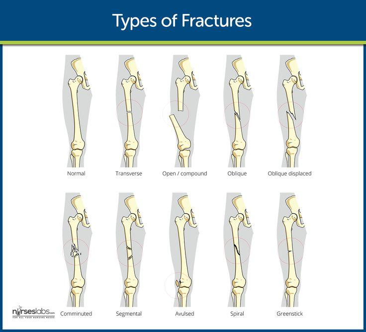There are several kinds of fracture that may occur in a bone: