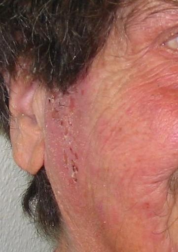 Neurodermitis Symptome: Juckreiz, Rötung, Schuppung, geschwollene Haut, Lidekzeme Risikofaktoren: Genetik, familiär gehäuftes Auftreten von Allergien Auslöser: Stress, falsche oder fehlende Hautpflege Ist sie heilbar? Nein, da die Ursache genetisch ist. Die Hautveränderungen können jedoch komplett ausheilen und die Patienten können auch ein Leben lang beschwerdefrei bleiben. Was kann man dagegen tun? Dermatologische Therapie, stadien- und klima-adaptierte Hautpflege, kortisonhaltige und…