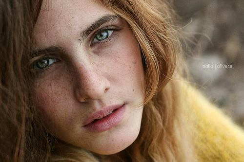 55 Best Freckles And Age Spots Care Images On Pinterest