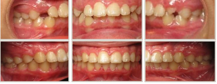 Look at how you can see the lower (mandibular) teeth after leveling and aligning with braces!  This is not 6 month braces, treating to an ideal occlusion (bite) generally takes longer than 6 months.