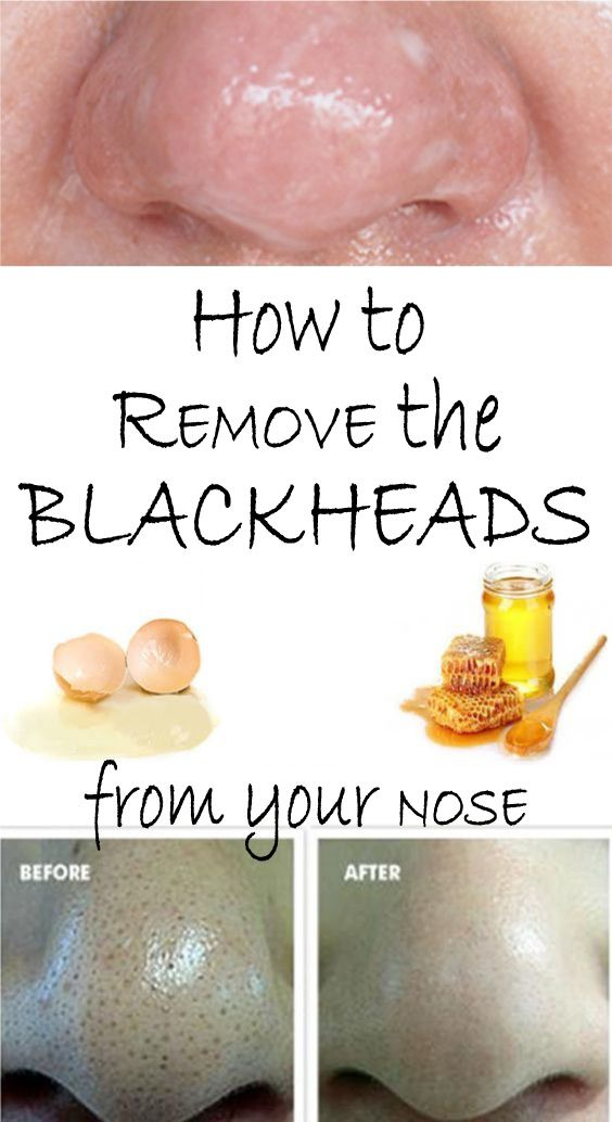 Blackheads are pores filled with impurities, mainly keratin and sebum. Because they appear at the surface of the skin, they oxidize and in time they turn dark. Generally, they appear on the nose, but they can also appear on the chin, forehead, lip or cheeks. However, the most difficult and painful to remove are those on the nose.Blackheads are pores filled with impurities, mainly keratin and sebum. Because they appear at the surface of the skin, they oxidize and in time they turn dark…