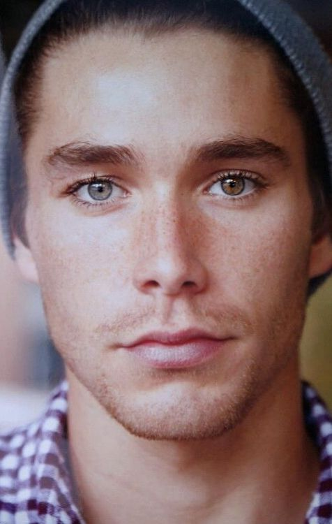 Boys with Heterochromia! So, that's what it is called. Eyes with different colors.