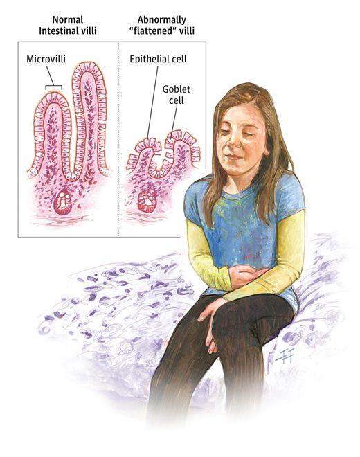 Celiac Disease in Children and Adolescents. JAMA Pediatr. 2014;168(3):300. doi:10.1001/jamapediatrics.2013.3331.