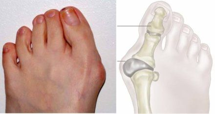 Natural Bunion Treatment