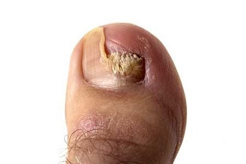 Cracked Heels not only affects the beauty of your foot but also prove to be very painful in intensive cases.These cracks are generally caused by insufficient moisture.The most common reasons for Heel Fissures are mainly walking barefooted, excessive hot showers, prolonged standing,climate,age, medical conditions etc., Here we have listed few of the best possible solutions […]