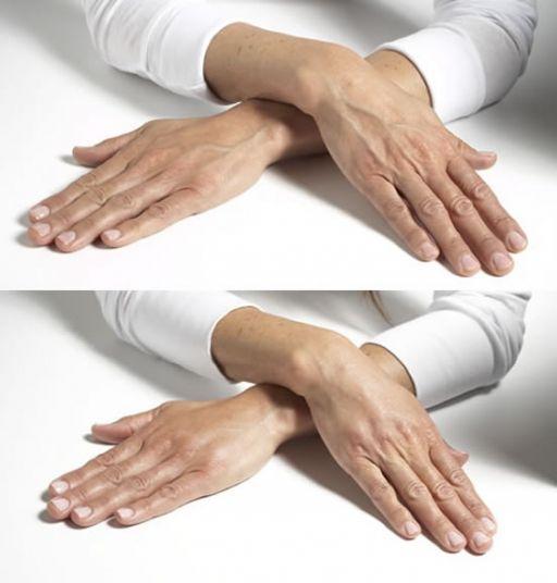 El tratamiento para manos venosas, venas varicosas o venas de araña se basa en…