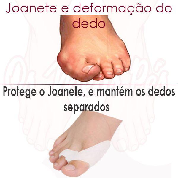 O Protector de Joanetes com Separador de Dedos Duplo,protege os dedos dos calos,auxiliando no alinhamento dos dedos e diminuir a pressão sobre o Joanete.