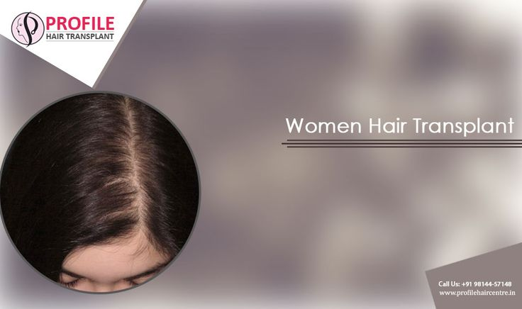 #Hair #fall problem can affect your social life to a great extent. The baldness problem can #completely #change your #personality and hence your life. For #women, this can be a #heart #break situation. Go with #women #hair #transplant option in order to avoid these conditions.