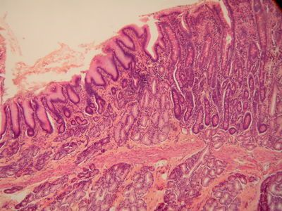 Histology-world.com! Hundreds of great histology slides for studying