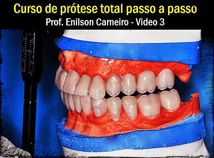 Curso de prótese total passo a passo - Video 3 | Odonto-TV