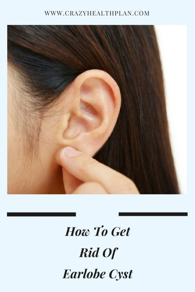 How To Get Rid Of Earlobe Cyst Earlobe Cyst Removal Cysts Ear Pimple Cyst Acne