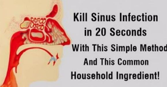 When it comes to treating sinus infections, it doesn't get any easier than this technique. In a nutshell, it involves pushing the tongue against the roof of the…