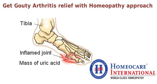 Gout is a form of inflammatory arthritis in which the person has high levels of uric acid in the blood. It is characterized by sudden attacks of joint pain, stiffness and swelling in a joint. To stop a gouy arthritis attack homeopathy is the most effective choice at Homeocare International. In South India Homeocare International is chain of world recognized homeopathic clinics with an aim to cure gouty arthritis with zero side effects.