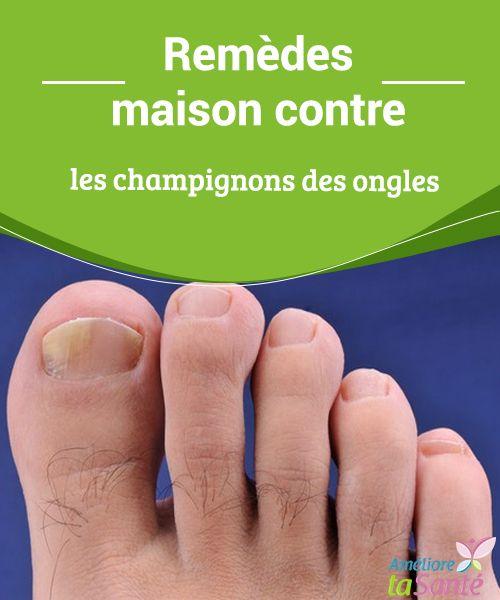 """""""Remèdes maison contre les champignons des ongles - """""""" Vous souffrez de mycoses au niveau des ongles des pieds et des mains ? Venez découvrir nos remèdes naturels pour combattre les champignons !"""""""""""""""