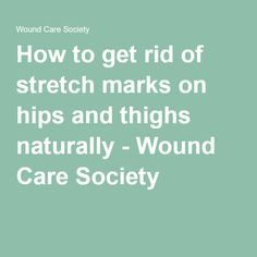 how to get rid of stretch marks on thighs