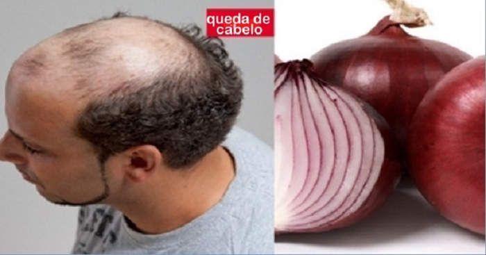 <p>Você+está+sofrendo+com+queda+de+cabelo?+A+solução+pode+estar+em+sua+casa.+E+essa+solução+é+algo+que+quase+todos+têm+na+cozinha+e+talvez+desta+vez+não+provocará+lágrimas,+e+sim+novos+fios+de+cabelo.+++Se+não+sabe,+a+cebola+é+uma+antiga+solução+caseira+…</p>