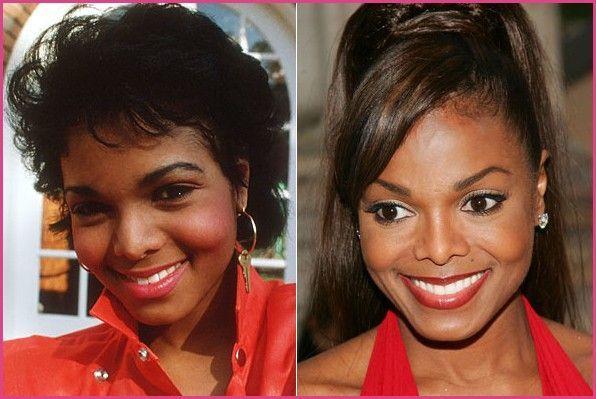 #cosmeticsurgery #beforeandafter #plasticsurgery #celebrities #celebrity
