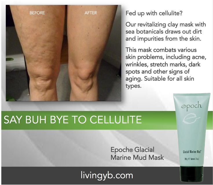 Our Glacial Marine Mud Mask helps reduce cellulite.