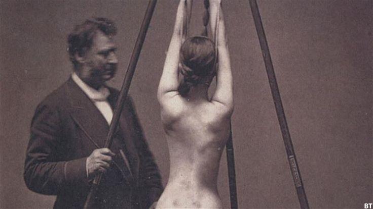 20 Creepy Vintage Medical Photos