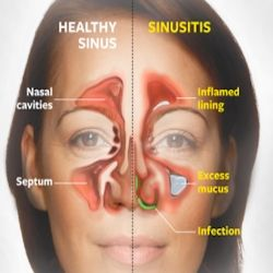 5 Amazing Home Remedies For Sinus Infection - Natural Treatments & Cure For Sinus Infection | Ayurvedic Natural Cure Supplements