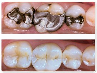 Pros and Limitations of White Filling Procedure #WhiteFillingRichmond