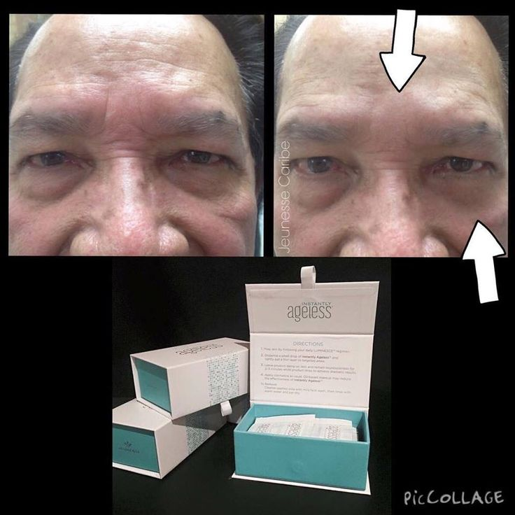 Incredible results. Instantly ageless. Wrinkles be gone!!! You shoul try it. Contact Jeunesse Caribe  +17874729497 or jeunessecaribe@outlook.com. #instantlyageless #jeunesse #jeunessecaribe #nowrinkles