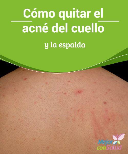 Cómo quitar el acné del cuello y la espalda Prestamos más atención a los granitos cuando salen en el rostro. Eso nadie lo puede negar. Pero ¿qué sucede con el acné del cuello y la espalda? ¿Cómo hacemos para quitarlo y disfrutar de una piel suave y hermosa?