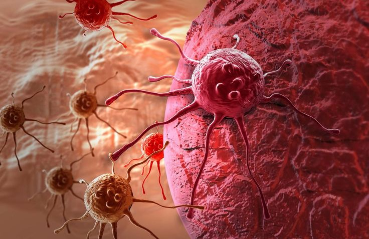 Кишечные бактерии побеждают рак: сальмонелла на страже здоровья  Сальмонелла — бактерия, которая чаще всего становится причиной пищевого отравления. В 2006 году исследователи Национального университета Чоннам в Кванджу, Южная Корея, искали способ создания нового противоракового агента.  Исследователи, во главе с биологами Чжун-Чун Мин и Чун Хон Рю, решили проверить, как поведет себя модифицированная сальмонелла в раковой ткани. В серии экспериментов, они ввели агент 20 мышам с человеческими…