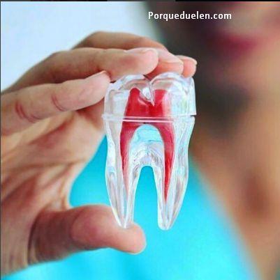 ¿Porqué Duelen Los #Dientes Al Masticar? #comer #dolor #dentist #dentista
