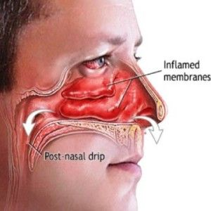 Best Natural Way To Relieve Nasal Congestion