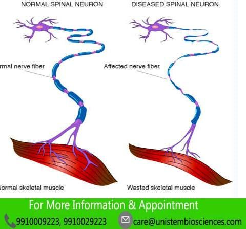 Spinal muscular atrophy is muscle deterioration disease, cause muscle damage and weakness.