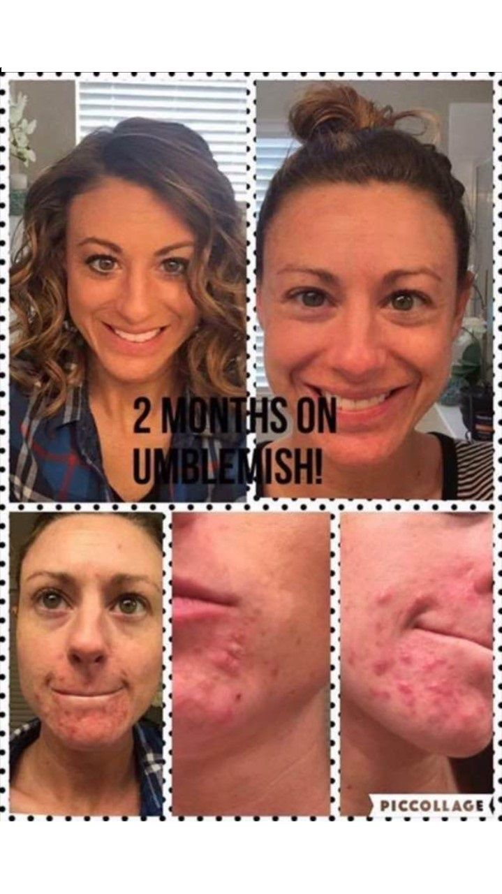 Rodan + Fields Unblemish Regimen is for acne and post acne marks. It calms, clears, controls and defends your skin. 60 day money back guarantee.