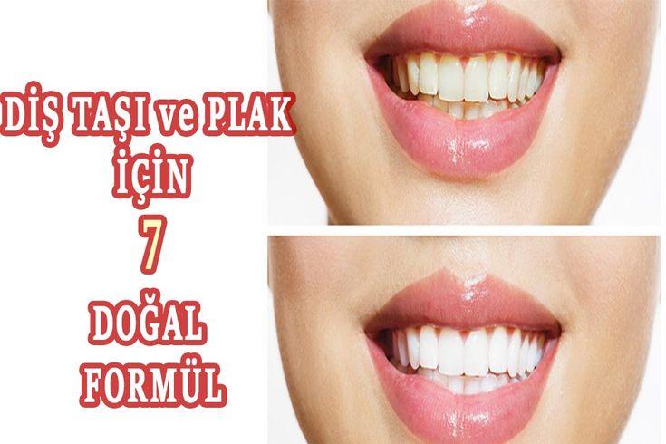 Diş Taşı ve Plak Oluşumuna 7 Bitkisel Formül - Sağlıklı Dişler İçin Yapı...