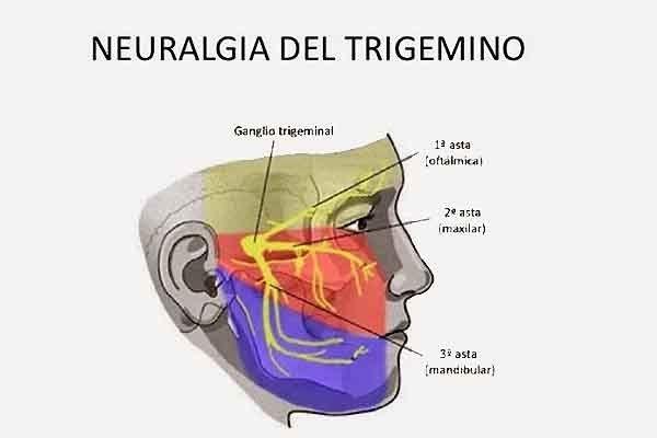 La neuralgia del trigémino es un dolor facial intenso muy especifico, de tipo lancinante o punzante, severo, generalmente unilateral y recurrente (episodios de breve duración e inicio brusco), localizado en la zona facial inervada por el nervio trigémino. Aunque el dolor puede presentarse de forma espontánea, es habitual la presencia de zonas (llamadas zonas gatillo) …
