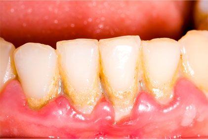Zabieg stomatologii estetycznej jest szczególnie polecane osobom palącym papierosy, a także pijącym znaczne ilości kawy i herbaty. Aby uzyskać trwalszy efekt, zabieg należy ponawiać co kilka miesięcy.