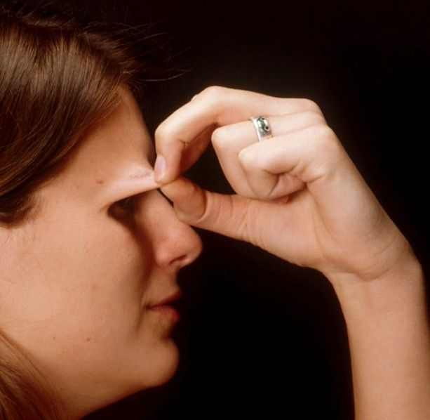 Ehlers-Danlos Syndrome can affect your eyes. Learn more here http://blog.rinkoveyecare.com/index.php/how-ehlers-danlos-syndrome-can-affect-the-eyes/