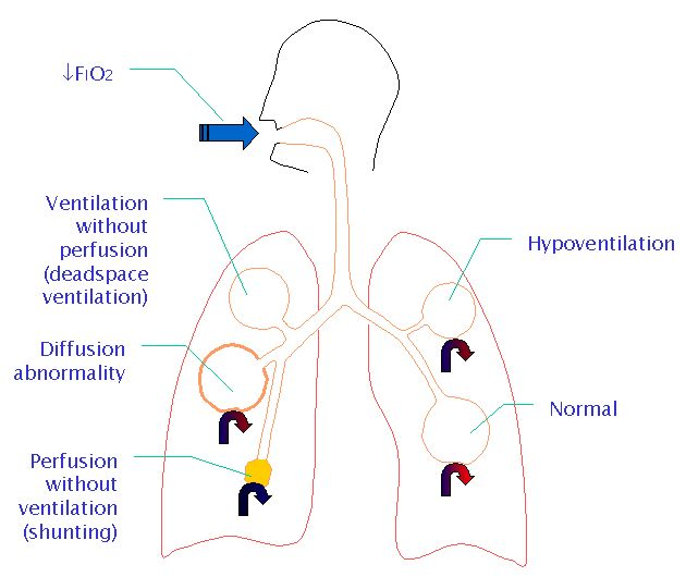 Respiratory failure - advanced   Level: ICU Nurses.  Love, love, love this webpage.
