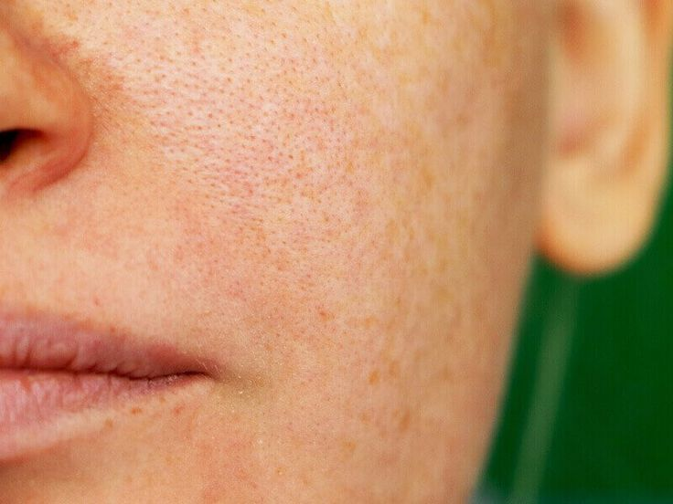 HOW TO SHRINK PORES ON NOSE AND CHEEKS
